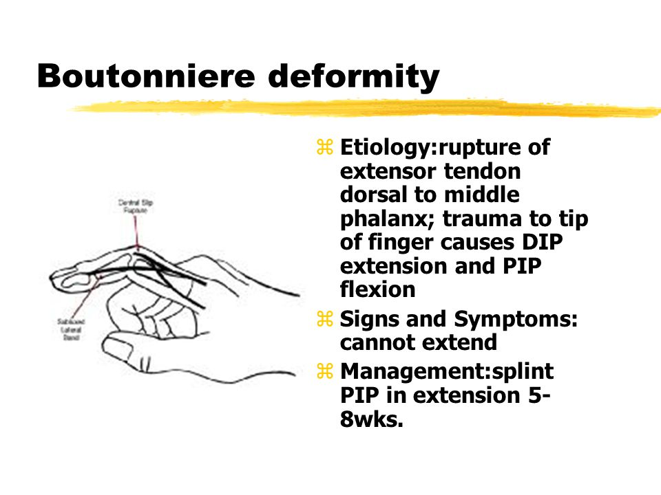 Boutonniere deformity z Etiology:rupture of extensor tendon dorsal to middle phalanx; trauma to tip of finger causes DIP extension and PIP flexion z Signs and Symptoms: cannot extend z Management:splint PIP in extension 5- 8wks.
