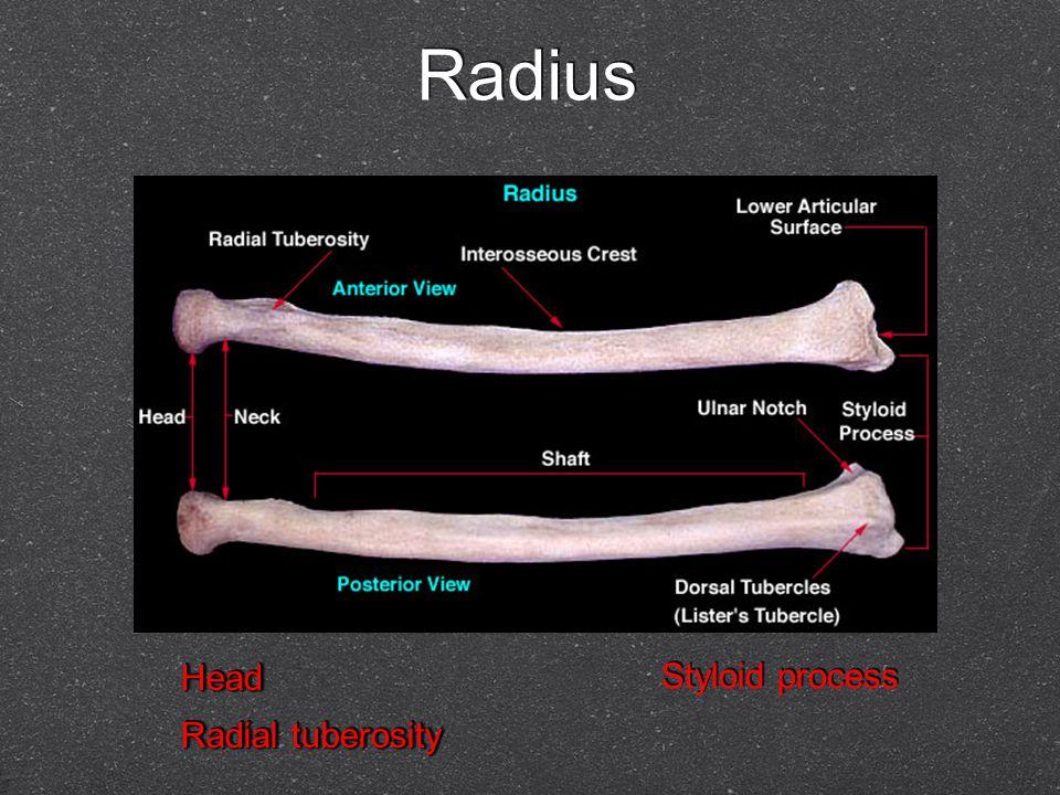 Radius Head Radial tuberosity Head Styloid process