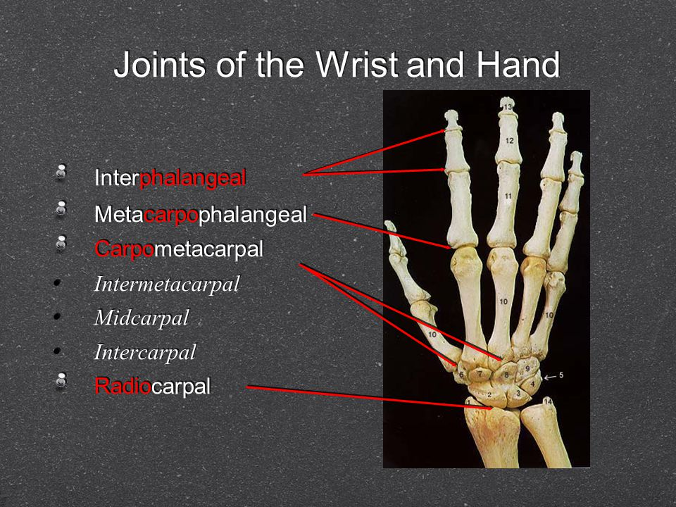 Joints of the Wrist and Hand Interphalangeal Metacarpophalangeal Carpometacarpal Intermetacarpal Midcarpal Intercarpal Radiocarpal Interphalangeal Met