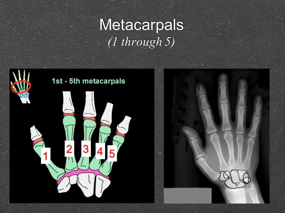 Metacarpals (1 through 5) 1 23 4 5