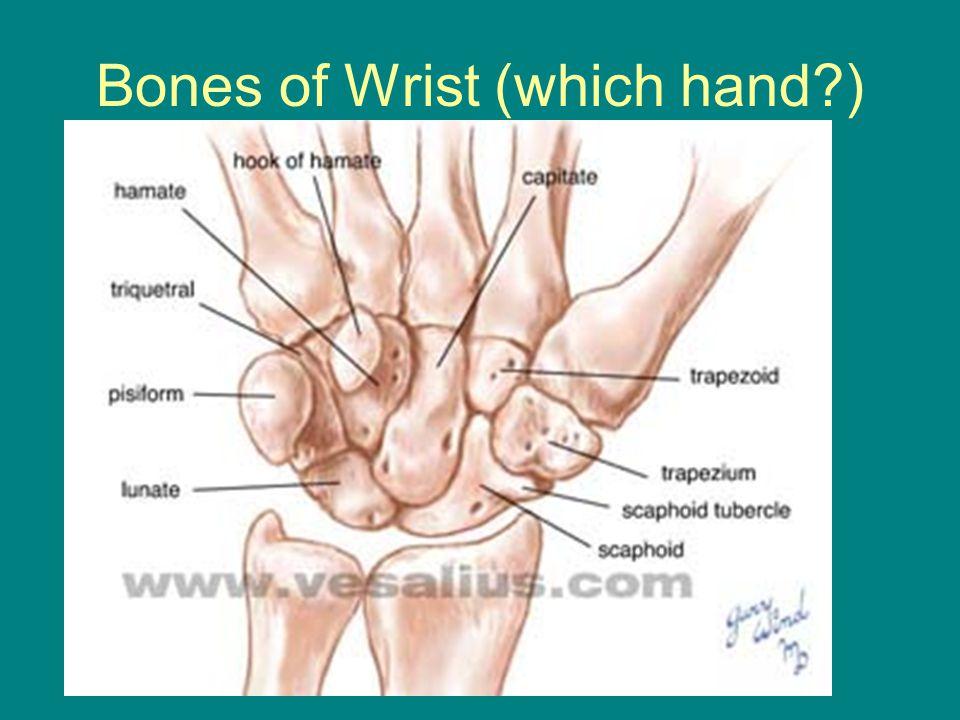 Bones of Wrist (which hand?)