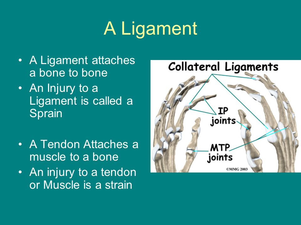 A Ligament A Ligament attaches a bone to bone An Injury to a Ligament is called a Sprain A Tendon Attaches a muscle to a bone An injury to a tendon or Muscle is a strain