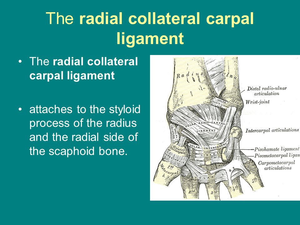 The radial collateral carpal ligament attaches to the styloid process of the radius and the radial side of the scaphoid bone.