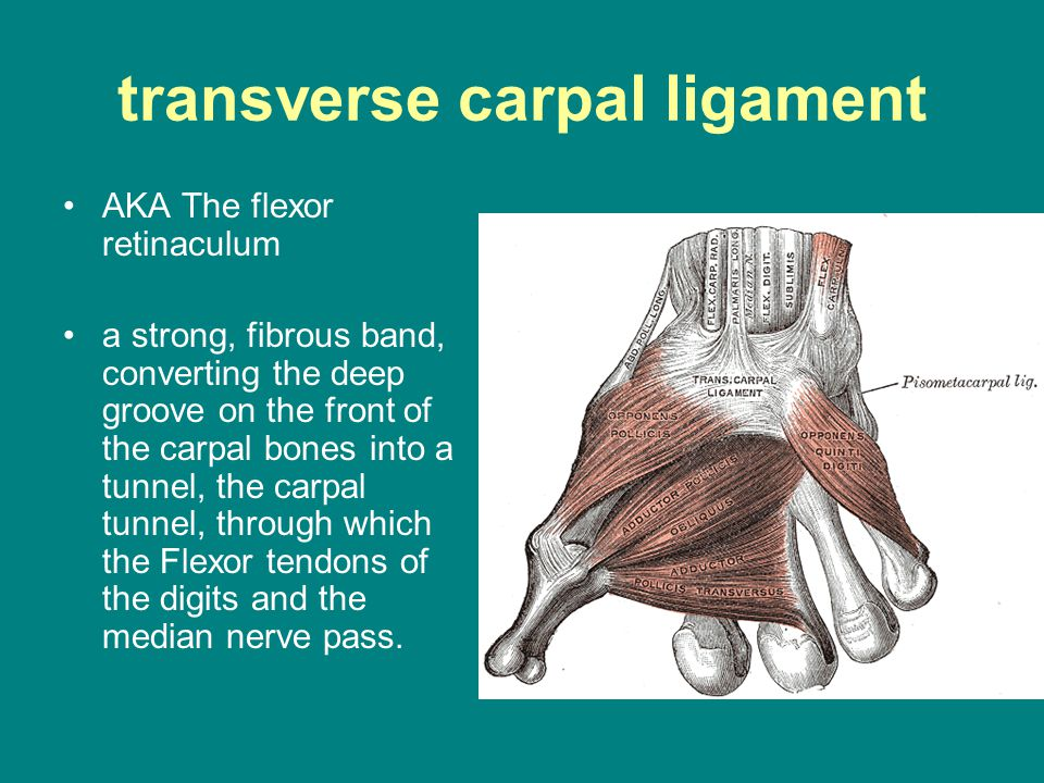 transverse carpal ligament AKA The flexor retinaculum a strong, fibrous band, converting the deep groove on the front of the carpal bones into a tunne