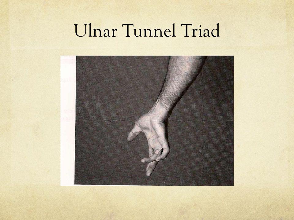 Ulnar Tunnel Triad