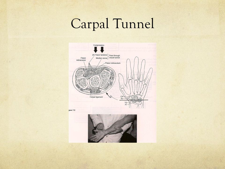 Tinel's Wrist Sign Procedure: Patient's hand supinated.