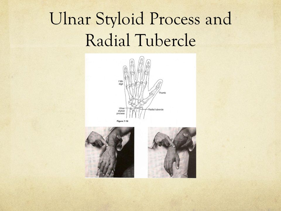 Finkelstein's Test Procedure: Instruct the patient to make a fist with the thumb across the palmar surface of the hand and to stress the wrist medially.