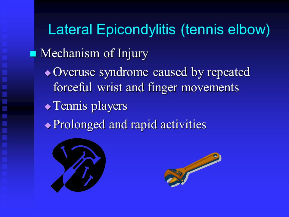 Lateral Epicondylitis (tennis elbow) Mechanism of Injury Mechanism of Injury  Overuse syndrome caused by repeated forceful wrist and finger movements