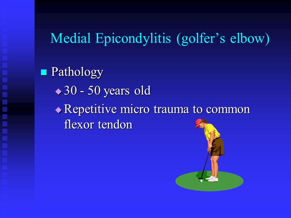 Medial Epicondylitis (golfer's elbow) Mechanisms of injury Mechanisms of injury  Throwing a baseball  Racquetball or tennis  Swimming backstroke  Hitting a golf ball