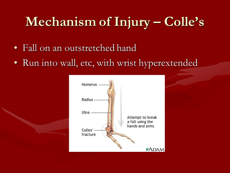 Mechanism of Injury – Colle's Fall on an outstretched handFall on an outstretched hand Run into wall, etc, with wrist hyperextendedRun into wall, etc, with wrist hyperextended