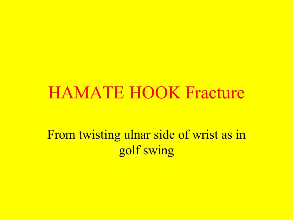 HAMATE HOOK Fracture From twisting ulnar side of wrist as in golf swing