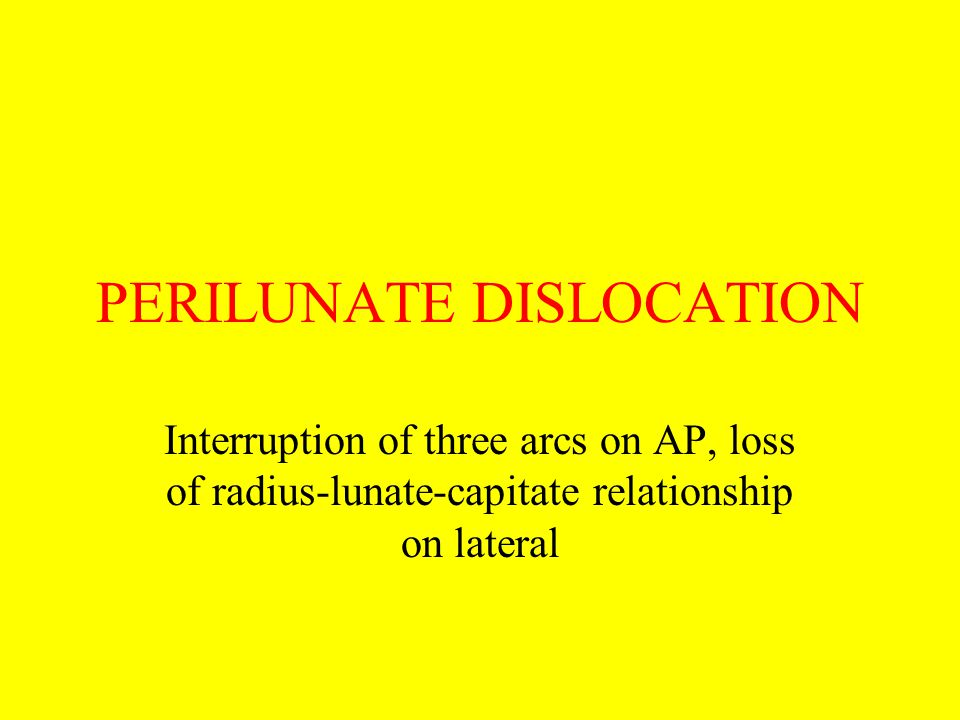 PERILUNATE DISLOCATION Interruption of three arcs on AP, loss of radius-lunate-capitate relationship on lateral