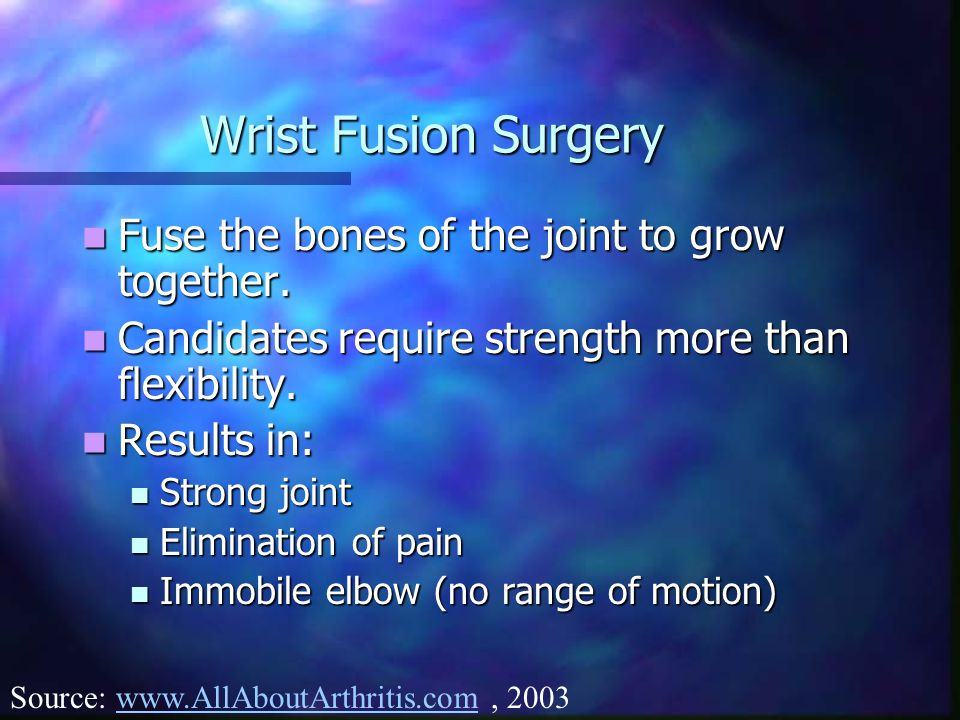 Wrist Fusion Surgery Fuse the bones of the joint to grow together. Fuse the bones of the joint to grow together. Candidates require strength more than