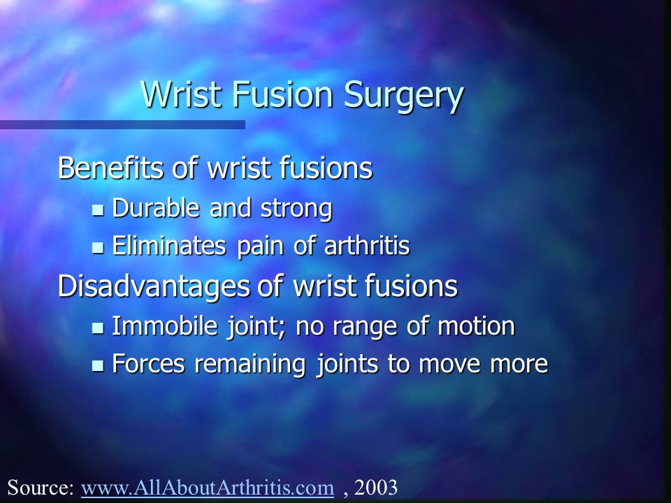 Wrist Fusion Surgery Benefits of wrist fusions Durable and strong Durable and strong Eliminates pain of arthritis Eliminates pain of arthritis Disadva
