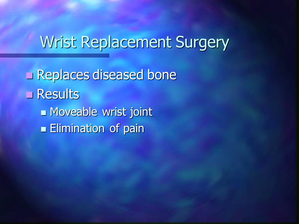 Wrist Replacement Surgery Replaces diseased bone Replaces diseased bone Results Results Moveable wrist joint Moveable wrist joint Elimination of pain Elimination of pain
