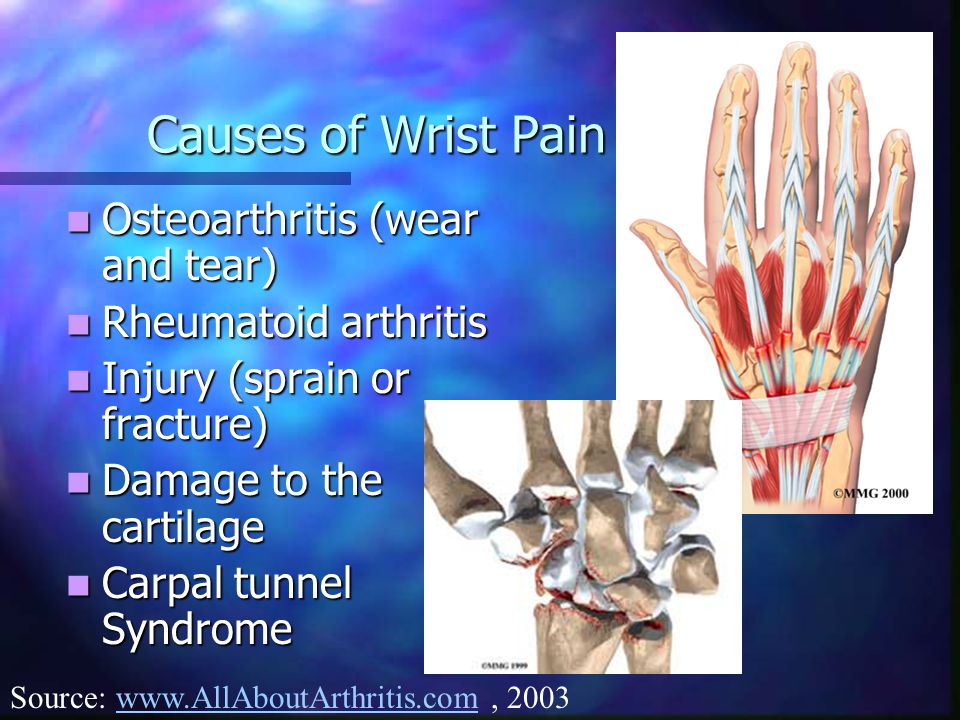 Causes of Wrist Pain Osteoarthritis (wear and tear) Osteoarthritis (wear and tear) Rheumatoid arthritis Rheumatoid arthritis Injury (sprain or fracture) Injury (sprain or fracture) Damage to the cartilage Damage to the cartilage Carpal tunnel Syndrome Carpal tunnel Syndrome Source: www.AllAboutArthritis.com, 2003www.AllAboutArthritis.com