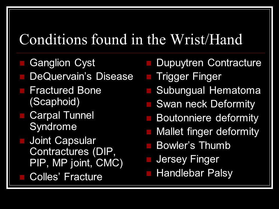 Conditions found in the Wrist/Hand Ganglion Cyst DeQuervain's Disease Fractured Bone (Scaphoid) Carpal Tunnel Syndrome Joint Capsular Contractures (DI