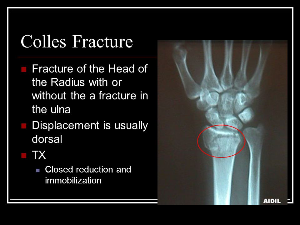 Colles Fracture Fracture of the Head of the Radius with or without the a fracture in the ulna Displacement is usually dorsal TX Closed reduction and i