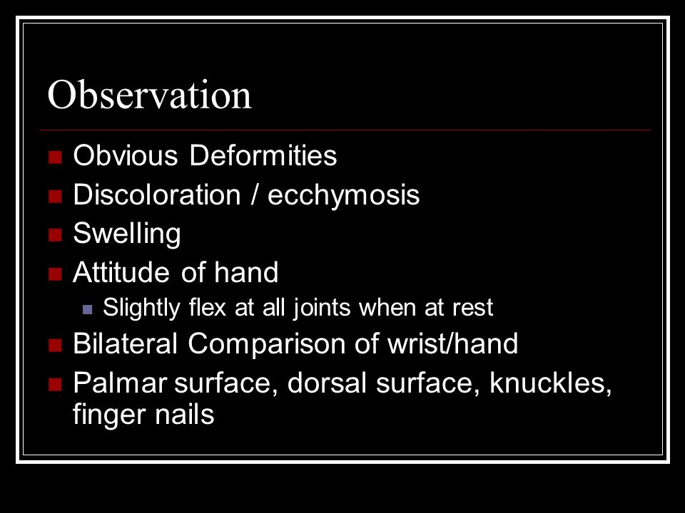 Observation Obvious Deformities Discoloration / ecchymosis Swelling Attitude of hand Slightly flex at all joints when at rest Bilateral Comparison of