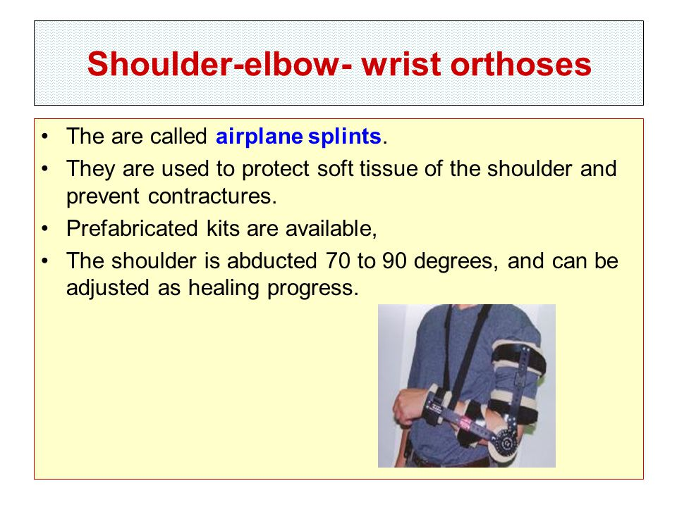 Shoulder-elbow- wrist orthoses The are called airplane splints.
