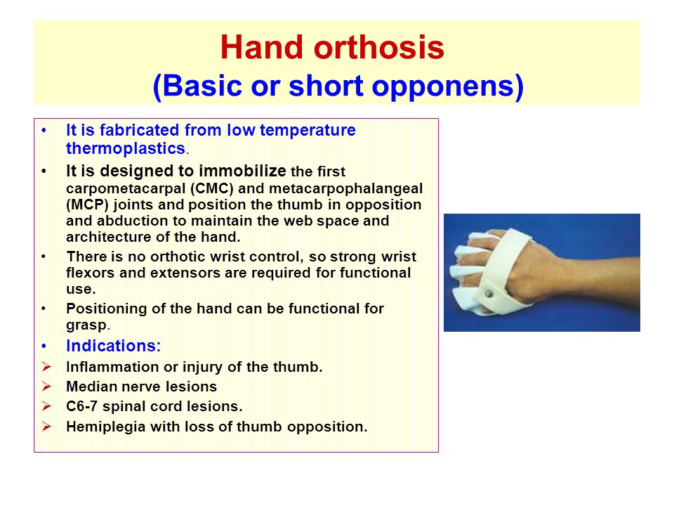 Hand orthosis (Basic or short opponens) It is fabricated from low temperature thermoplastics.