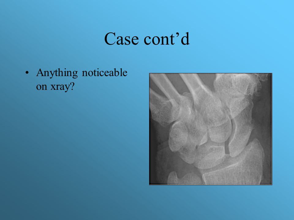 Case cont'd Anything noticeable on xray?