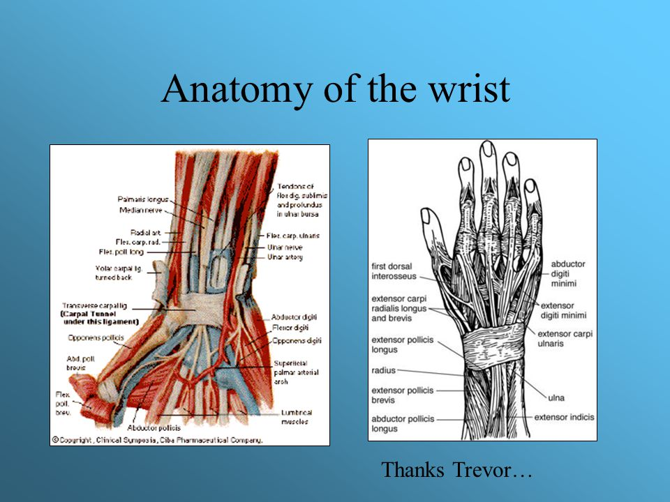 Carpal instability Stage 2: –Fall on extended wrist