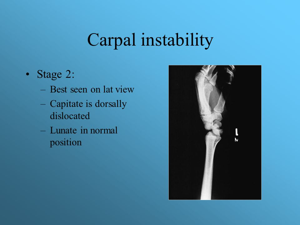 Carpal instability Stage 2: –Best seen on lat view –Capitate is dorsally dislocated –Lunate in normal position