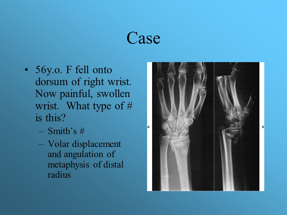 Case 56y.o. F fell onto dorsum of right wrist. Now painful, swollen wrist. What type of # is this? –Smith's # –Volar displacement and angulation of me