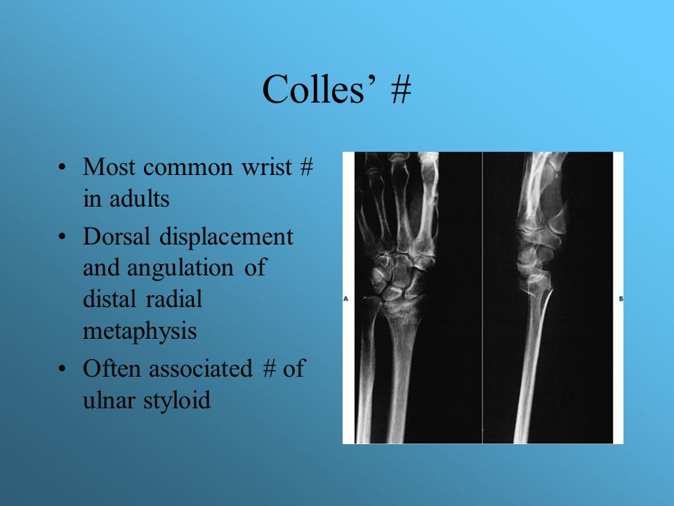 Colles' # Most common wrist # in adults Dorsal displacement and angulation of distal radial metaphysis Often associated # of ulnar styloid