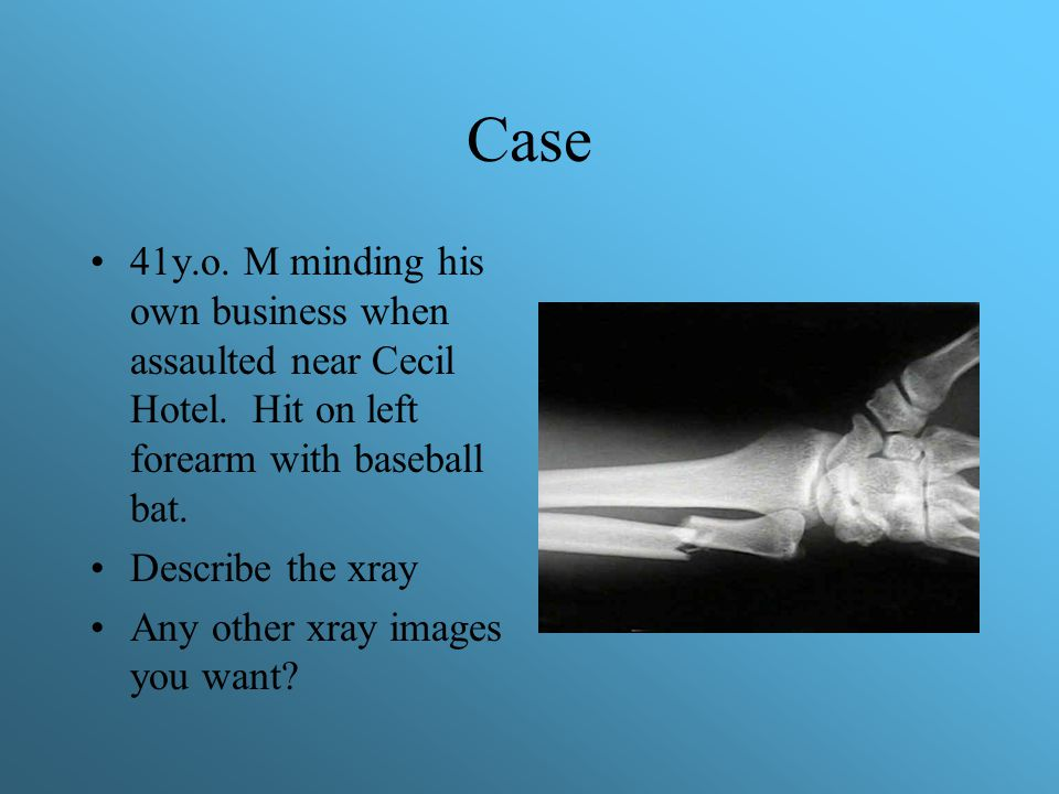 Case 41y.o. M minding his own business when assaulted near Cecil Hotel. Hit on left forearm with baseball bat. Describe the xray Any other xray images