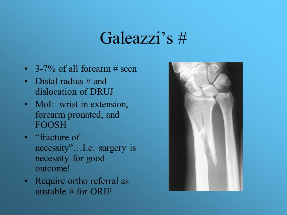 "Galeazzi's # 3-7% of all forearm # seen Distal radius # and dislocation of DRUJ MoI: wrist in extension, forearm pronated, and FOOSH ""fracture of nece"