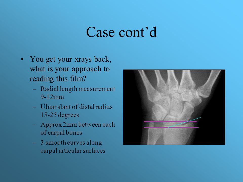 Case cont'd What if xray were completely normal, but worrisome exam.