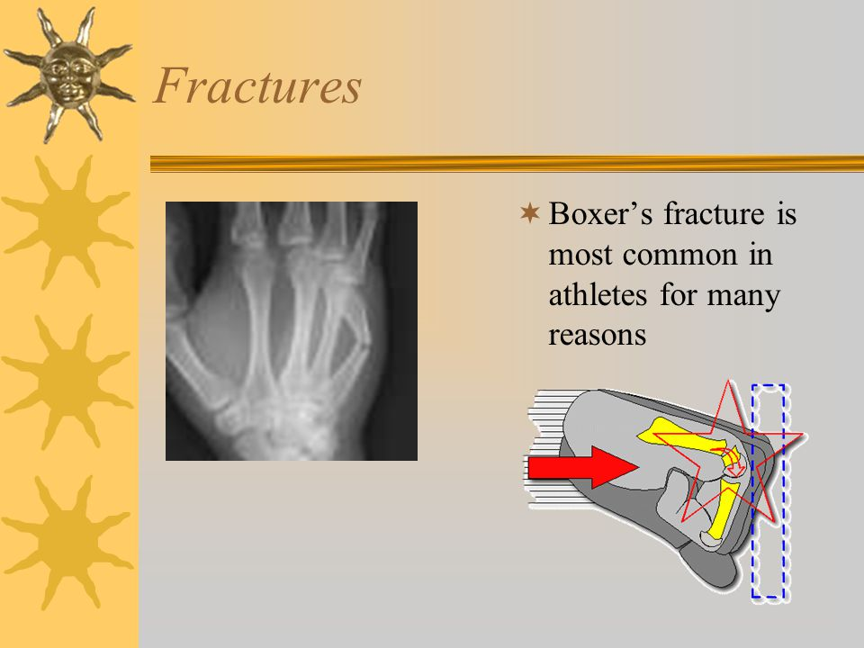 Fractures  Boxer's fracture is most common in athletes for many reasons