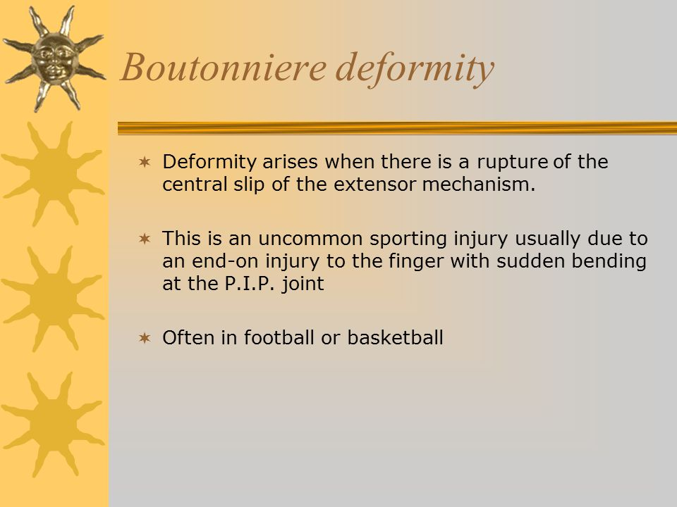 Boutonniere deformity  Deformity arises when there is a rupture of the central slip of the extensor mechanism.  This is an uncommon sporting injury