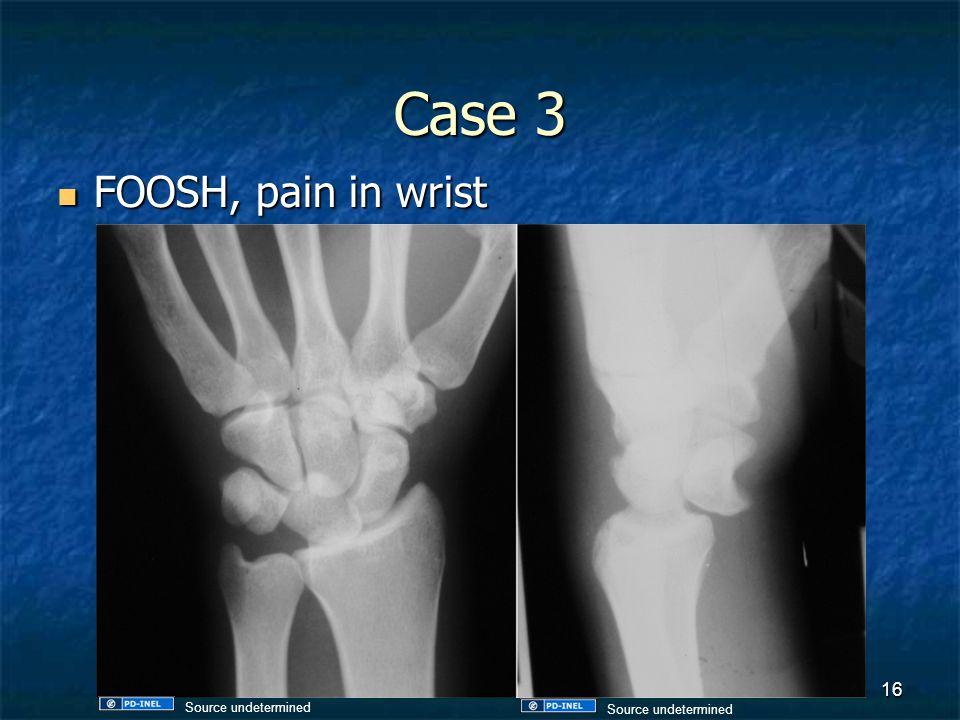 Case 3 FOOSH, pain in wrist FOOSH, pain in wrist 16 Source undetermined
