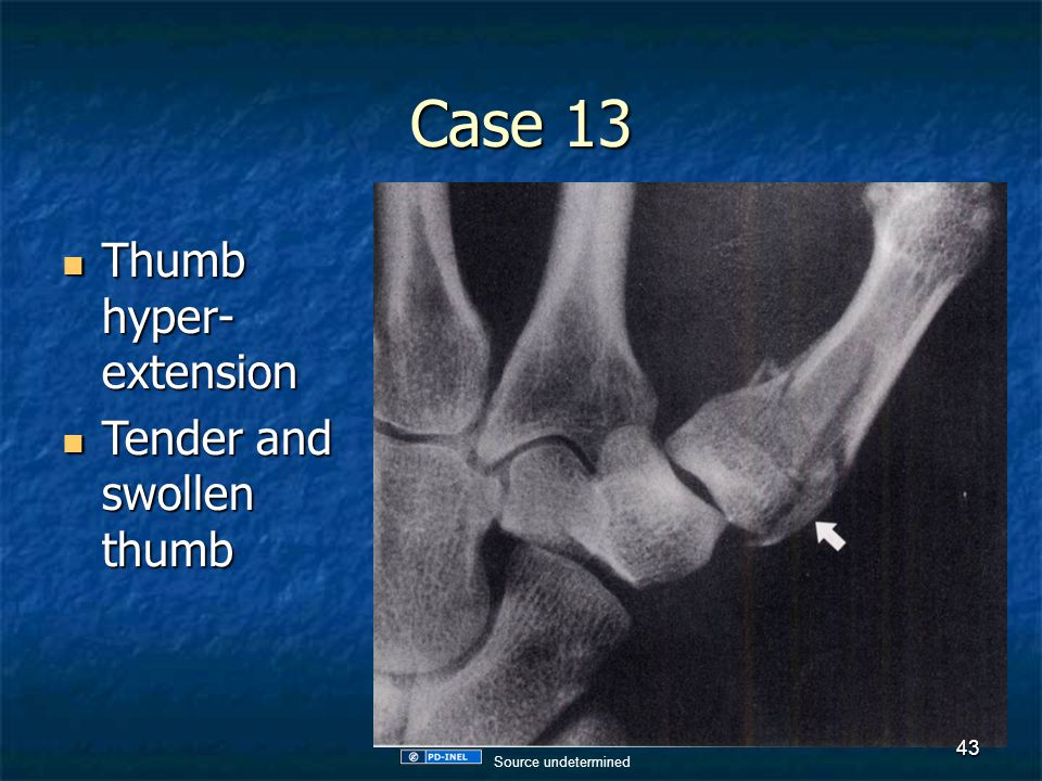 Case 13 Thumb hyper- extension Thumb hyper- extension Tender and swollen thumb Tender and swollen thumb 43 Source undetermined
