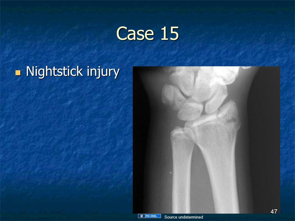 Case 15 Nightstick injury Nightstick injury 47 Source undetermined