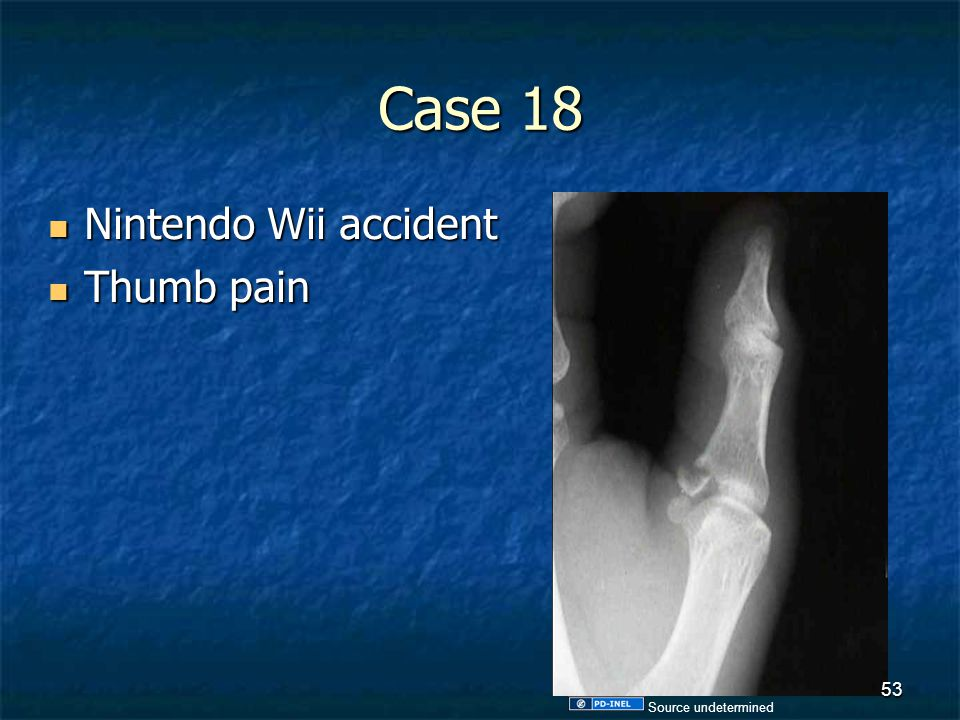Case 18 Nintendo Wii accident Nintendo Wii accident Thumb pain Thumb pain 53 Source undetermined