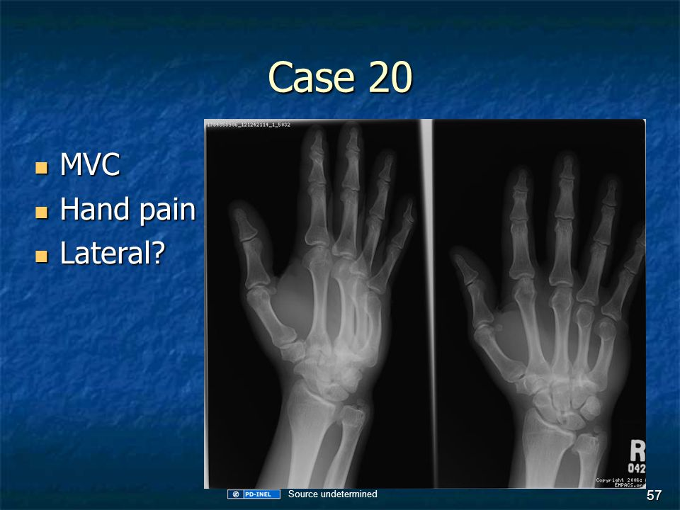 Case 20 MVC MVC Hand pain Hand pain Lateral? Lateral? 57 Source undetermined