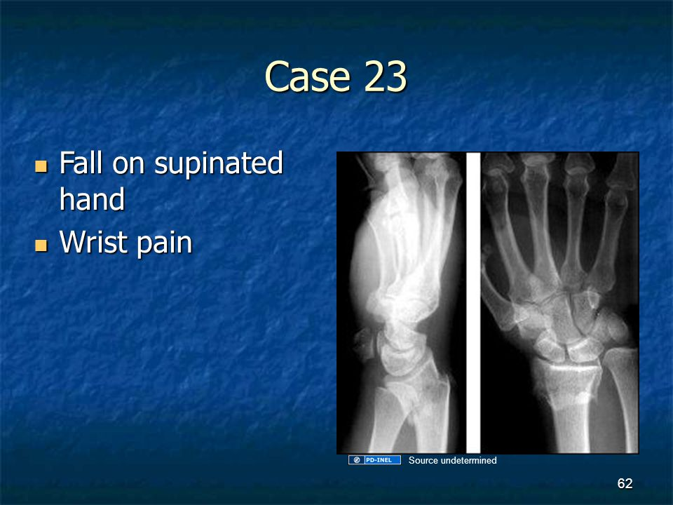 Case 23 Fall on supinated hand Fall on supinated hand Wrist pain Wrist pain 62 Source undetermined