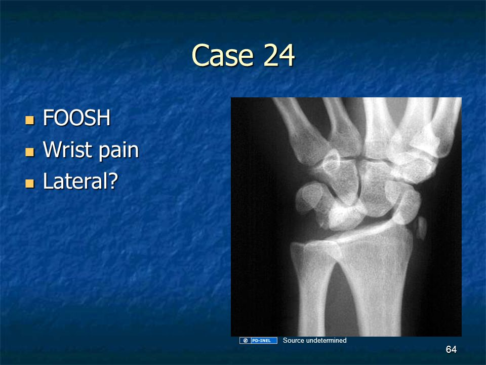 Case 24 FOOSH FOOSH Wrist pain Wrist pain Lateral? Lateral? 64 Source undetermined