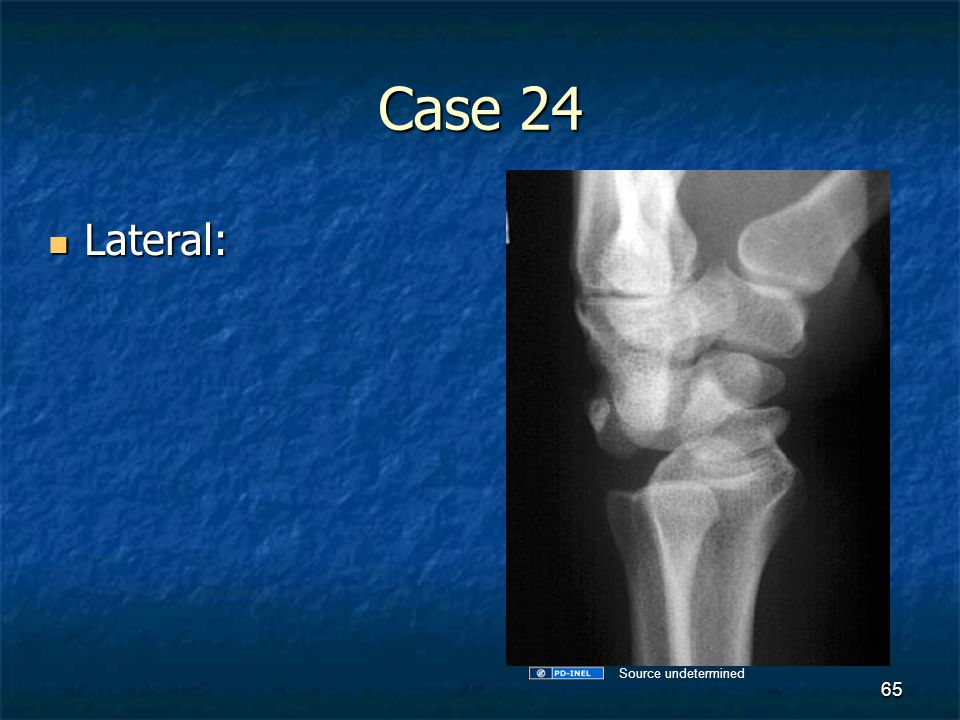 Case 24 Lateral: Lateral: 65 Source undetermined