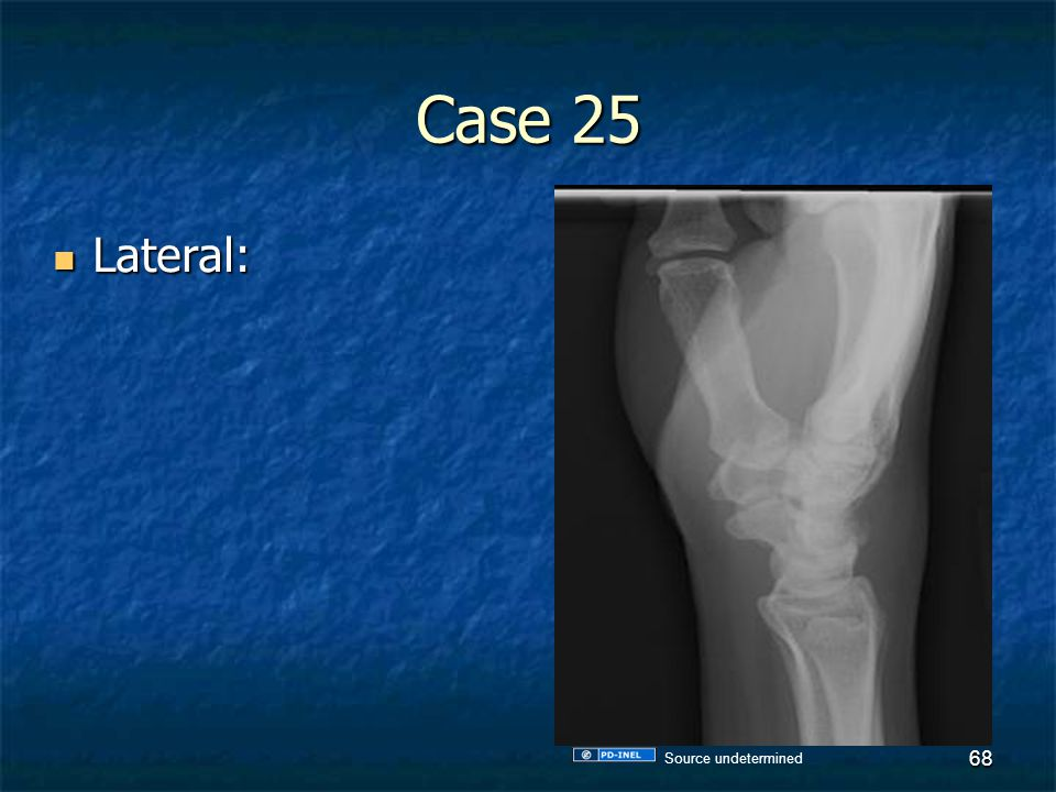 Case 25 Lateral: Lateral: 68 Source undetermined