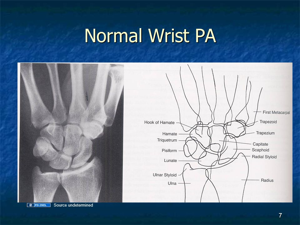 Normal Wrist Lateral 8 Source undetermined