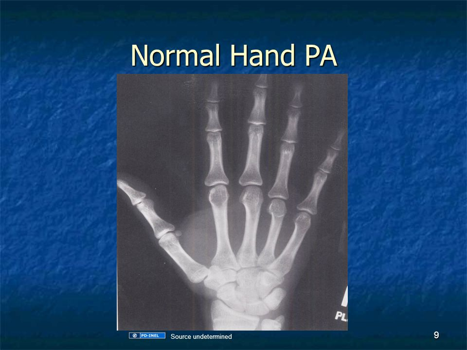 Normal Hand Lateral 10 Source undetermined