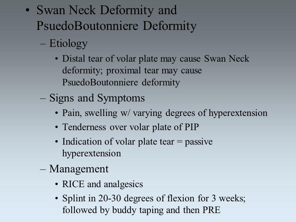 Swan Neck Deformity and PsuedoBoutonniere Deformity –Etiology Distal tear of volar plate may cause Swan Neck deformity; proximal tear may cause Psuedo