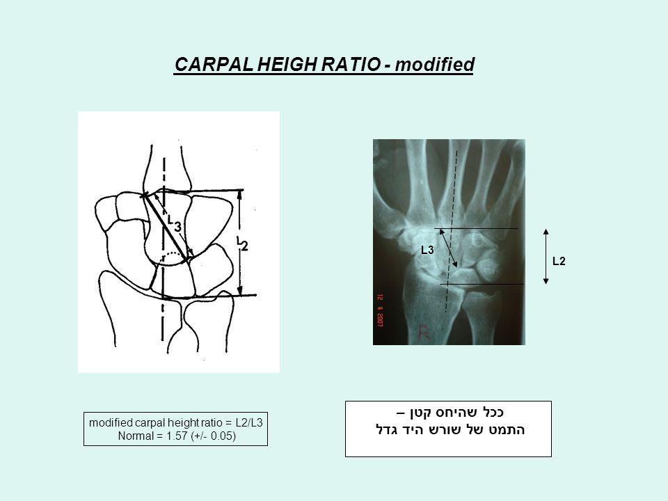 ככל שהיחס קטן – התמט של שורש היד גדל CARPAL HEIGH RATIO - modified modified carpal height ratio = L2/L3 Normal = 1.57 (+/- 0.05) L2 L3
