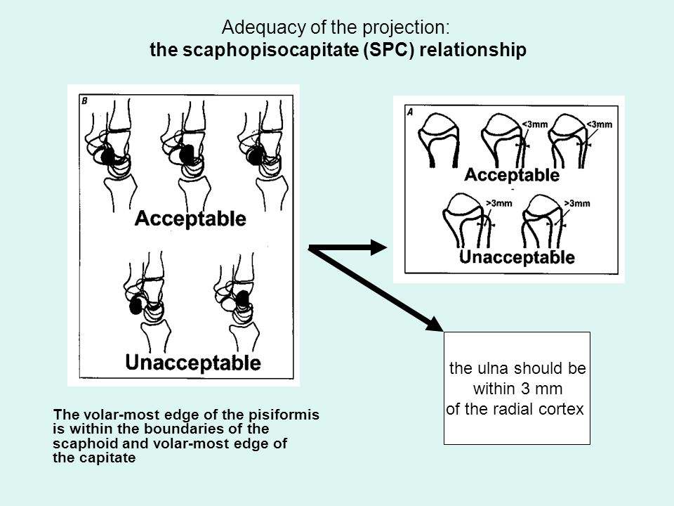 Adequacy of the projection: the scaphopisocapitate (SPC) relationship The volar-most edge of the pisiformis is within the boundaries of the scaphoid a