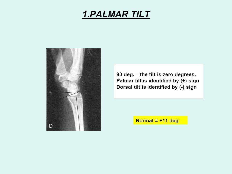 1.PALMAR TILT 90 deg. – the tilt is zero degrees.